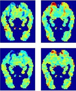 NSF-fMRI-quad-image-251x300